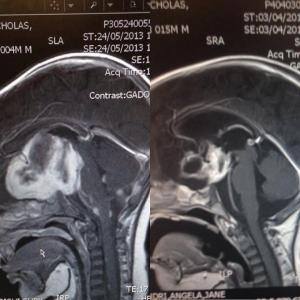 o the left is Bede;s tumour May 2013 and to the right April 2014. The white specks on his brain stem that used to keep his neck crooked to one side are completely gone.