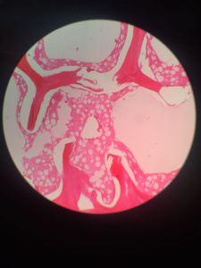 spongey bone